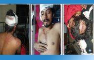 সখীপুরে সন্ত্রাসী হামলায় ছাত্রলীগ নেতা আলভীসহ আহত তিন